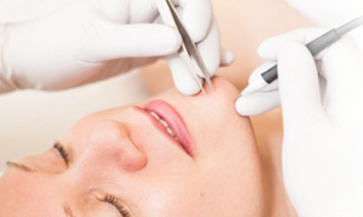 We provide electrolysis in our clinic to target odd hair, dark facial hair, grey or white facial hair. it is a permanent hair removal technique done over multiple courses.
