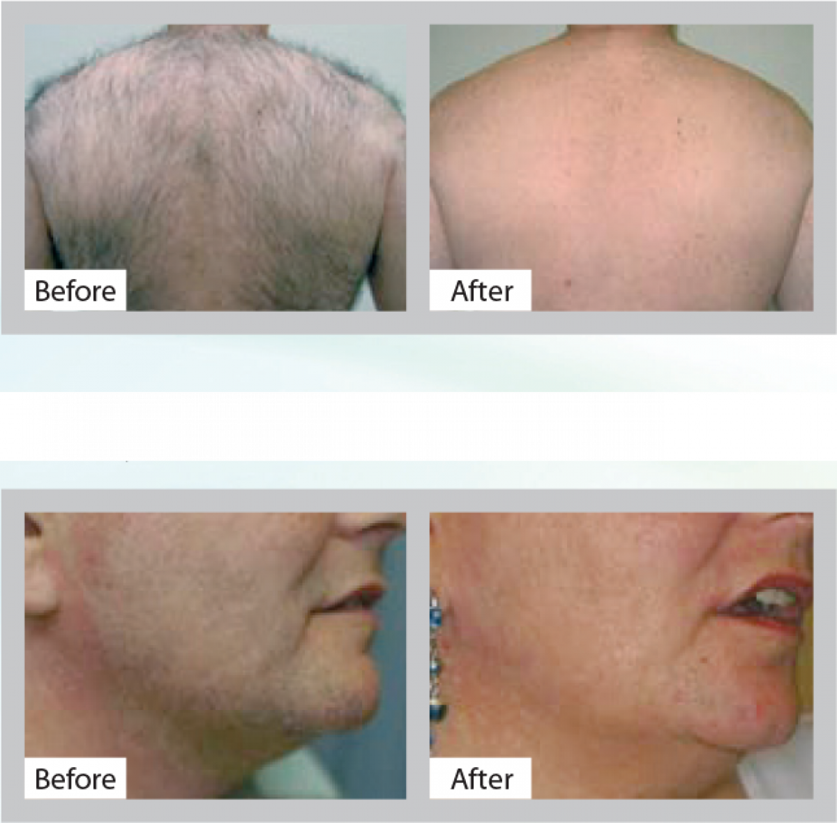 Stop the tiresome daily routine and choose a more permanent solution with our Lynton lightbased hair removal treatments